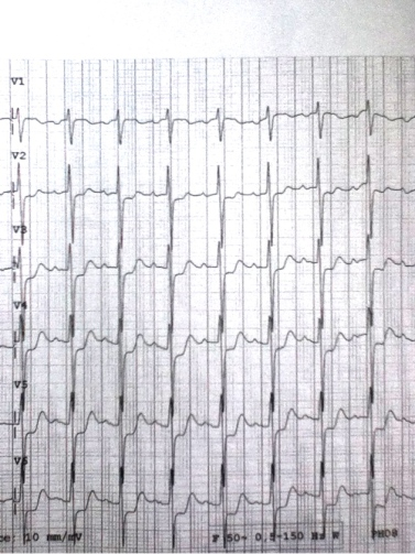 Precordial chest pain