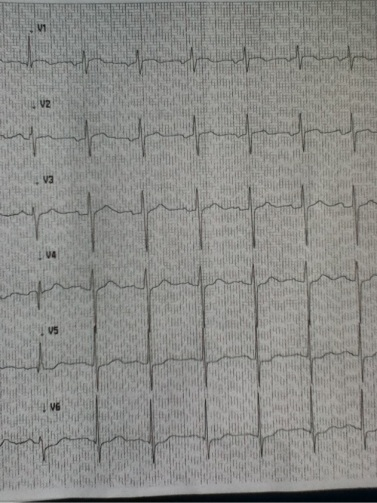 ECG Precordial no pain