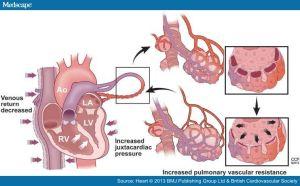 PEEP hemodynamic effects