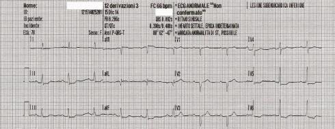 EK post cardio
