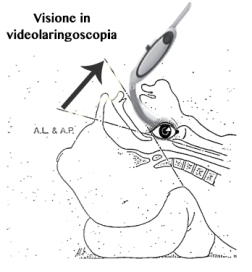 Visione in videolaringoscopia.jpg